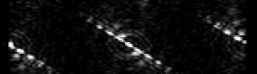 Diffraction Symmetries of C. elegans with Prof. Magnes