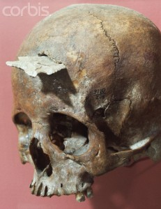 The skull of a Native American woman with a projectile point embedded in it.