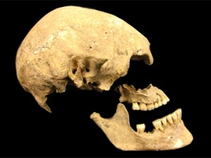 Figure 2: An 8,000 year old skull of a hunter-gatherer was found in Sweden.