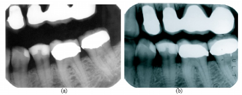 The Application Of Forensic Dentistry Through Multiple Means Real Archaeology