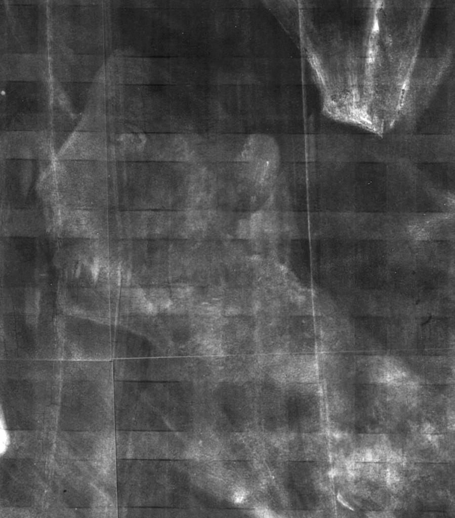 P.8e, x-ray, head in profile